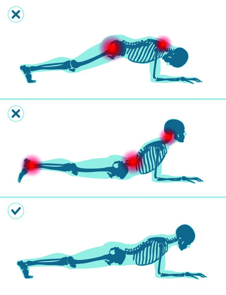 Wrong and correct plank position. Right and wrong execution technique of sport exercise. Common mistakes in sport workout